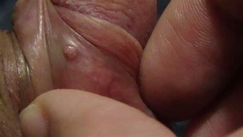 zits penis jpg 800x451