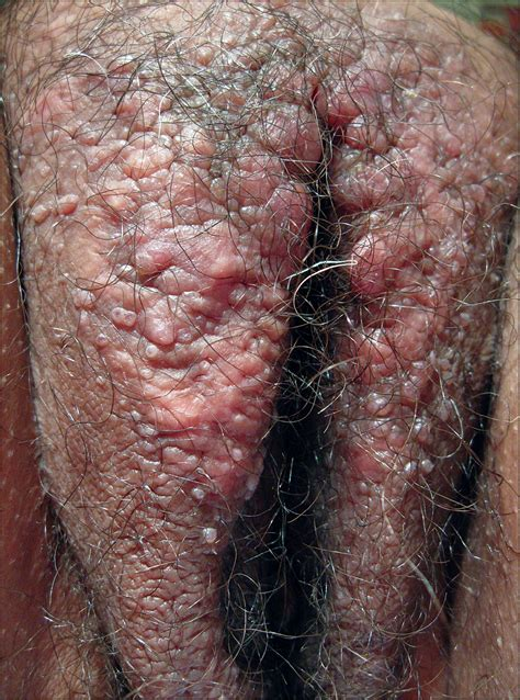 Vulvar diseases in primary care the visible lesion is it png 948x1277